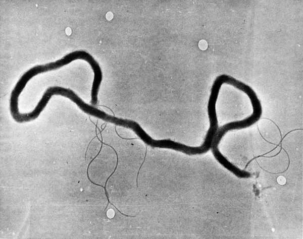 Chlamydia, Syphilis Cases on Rise Among U.S. Military
