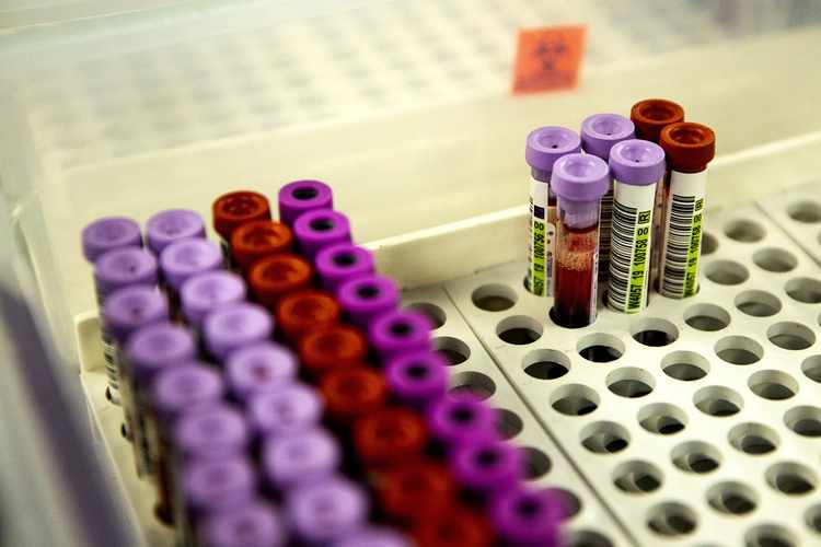 Blood Test Creepily Close to Predicting When You Will Die
