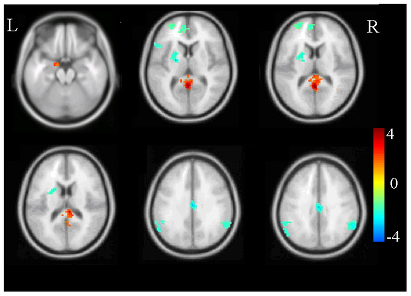 Brain Scans Shed Light on the PTSD Brain, but Cannot Diagnose PTSD